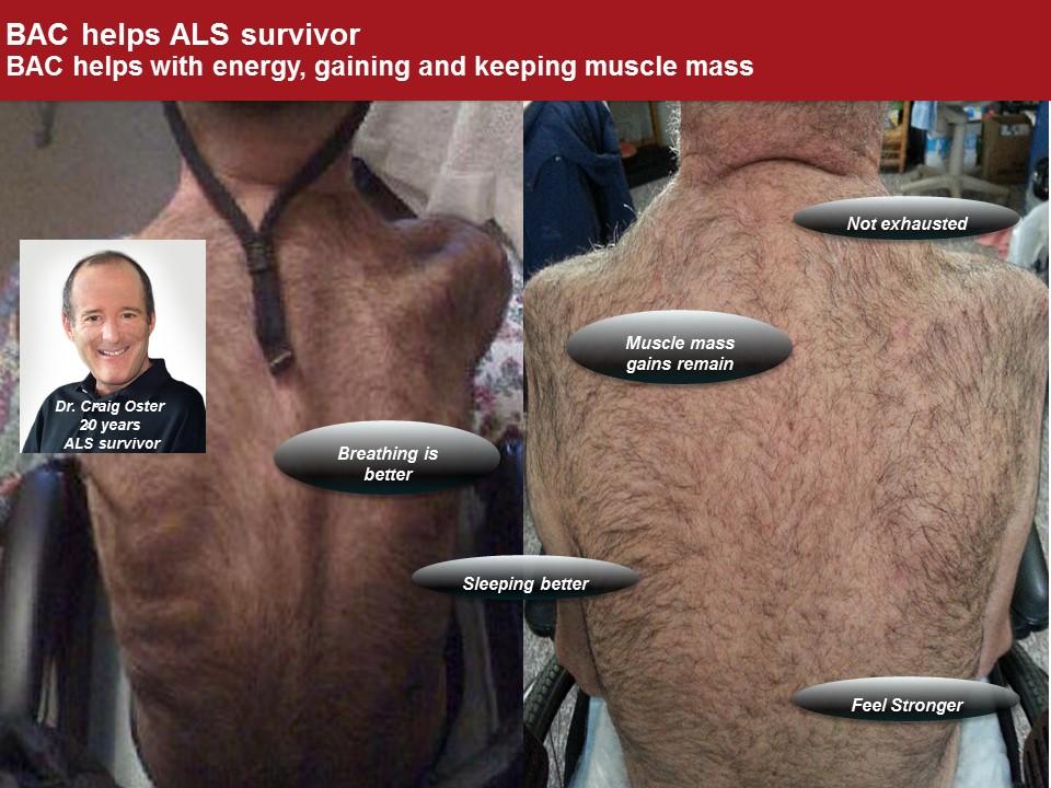 ALS (Lou Gehrig) Survivor | The Magic is BAC